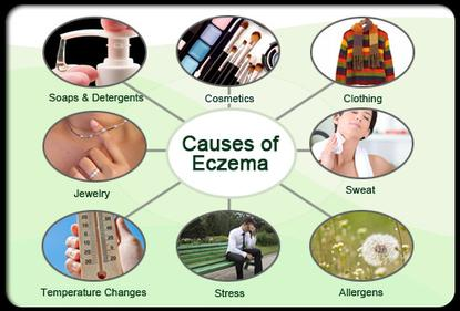 causes of eczma infographic