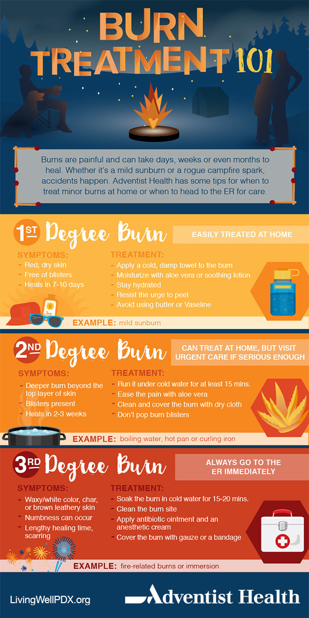 Burn Treatment 101 Infographic