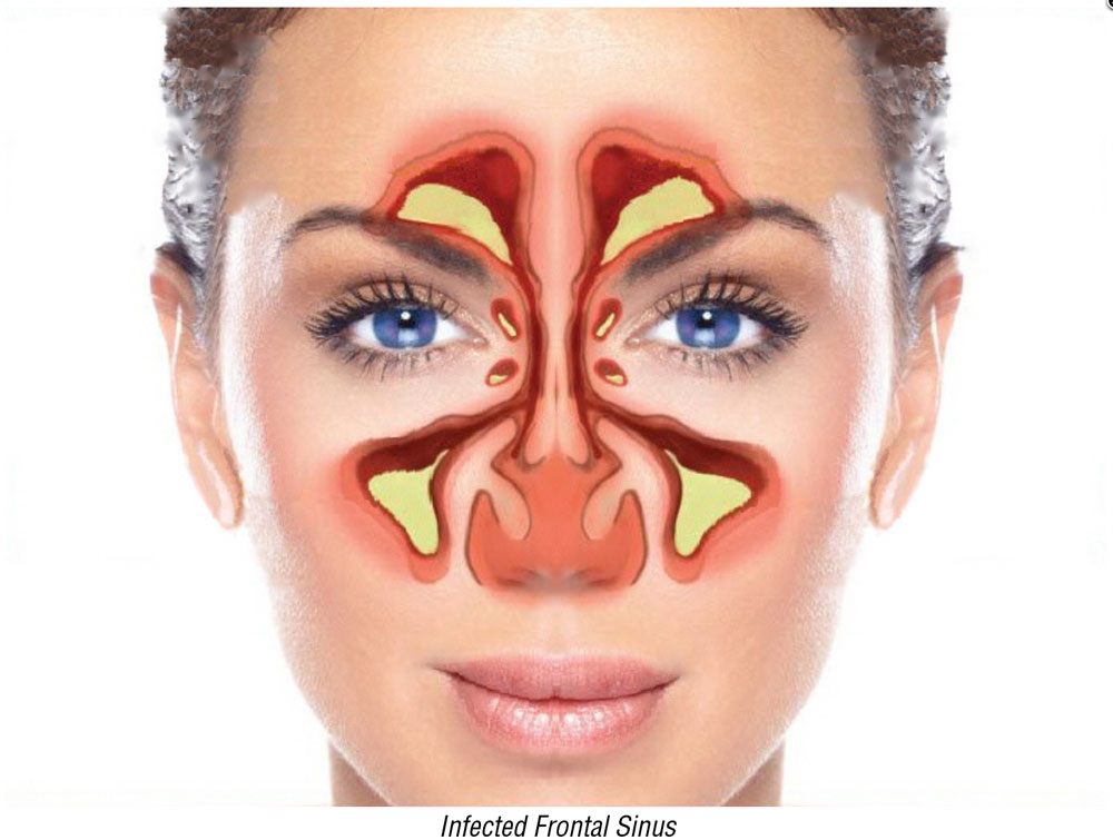Infected Frontal Sinus