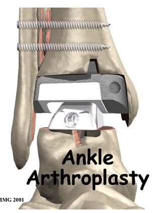 Artificial Joint Replacement of the Ankle