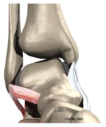 Ankle Sprain and Instability