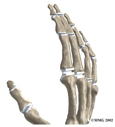 Artificial Joint Replacement of the Finger