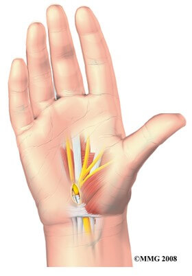 Open Carpal Tunnel Release