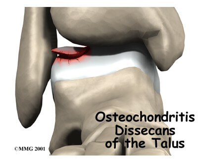 Osteochondritis Dessecans of the Talus