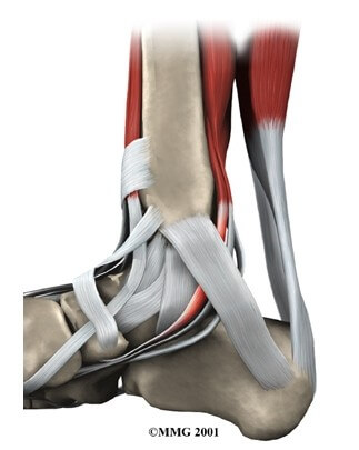Posterior Tibial Tendon Problems