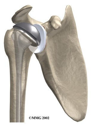 Artificial Joint Replacement