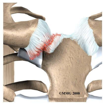 Sternoclavicular Joint Problems